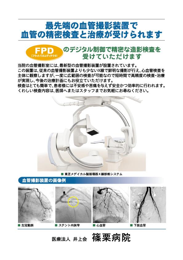 血管投影装置