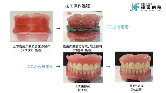 総義歯製作の新たな取り組み スライド画像04