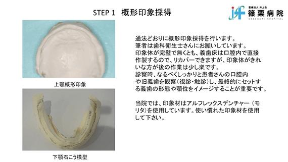 総義歯製作の新たな取り組み スライド画像05