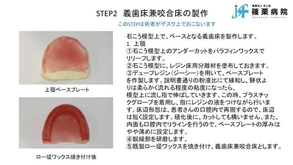 総義歯製作の新たな取り組み スライド画像06
