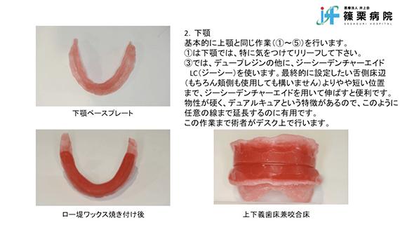 総義歯製作の新たな取り組み スライド画像07