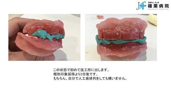 総義歯製作の新たな取り組み スライド画像09