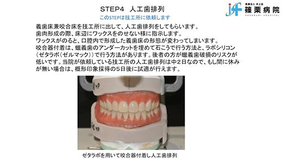 総義歯製作の新たな取り組み スライド画像10