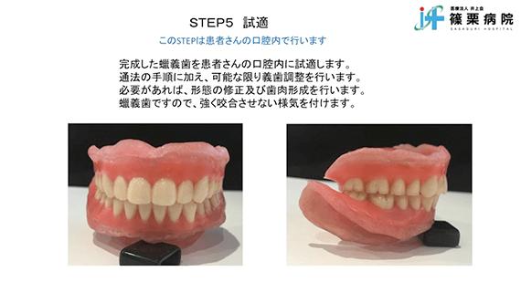 総義歯製作の新たな取り組み スライド画像11