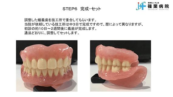 総義歯製作の新たな取り組み スライド画像12