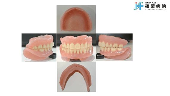 総義歯製作の新たな取り組み スライド画像13