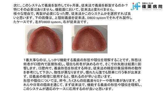 総義歯製作の新たな取り組み スライド画像16